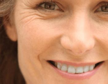 Zmanjšana proizvodnja kolagena se pokaže kot gubice okoli oči
