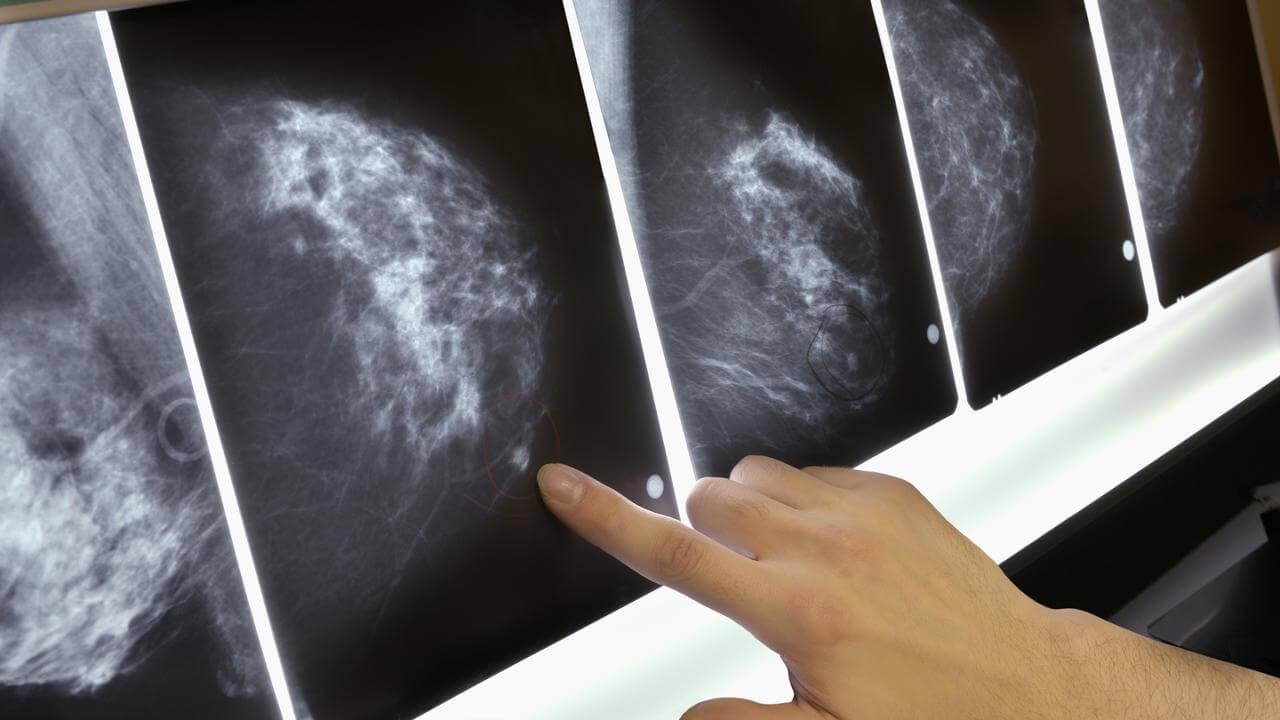 Obstajajo različne tehnike diagnosticiranja raka dojk, mednje spadata tudi laserska diagnostika in termografija.
