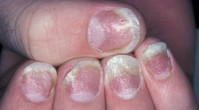 Glivice – kaj so glivice na nohtih in kako jih lahko učinkovito odpravite