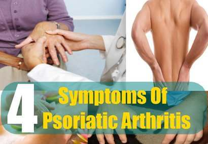 arthritis-of-cervical-facet-joints-stone-arthritis-hot-fa5