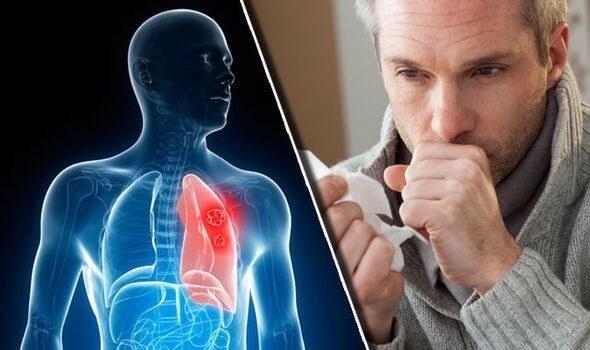 pljucni-rak