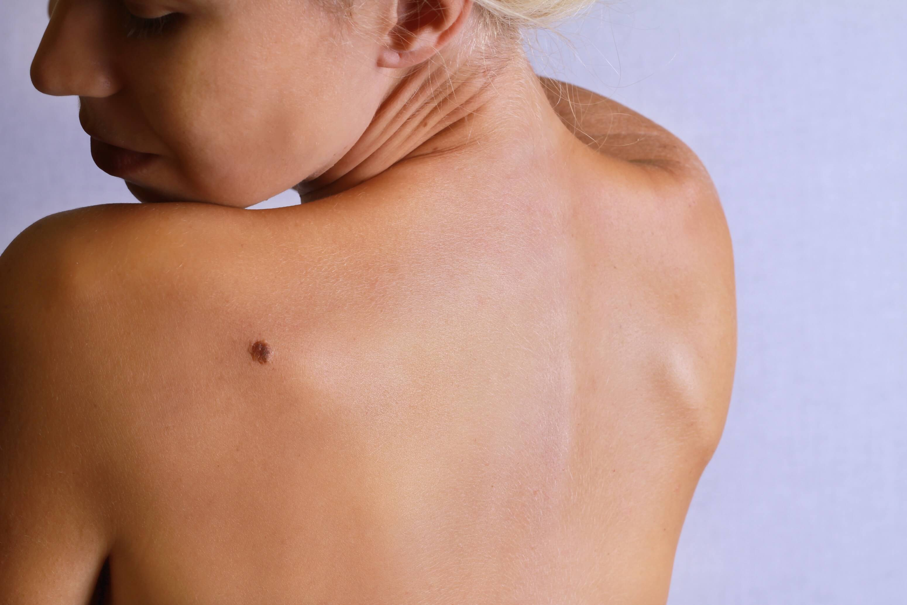 Young woman lookimg at birthmark on her back, skin. Checking benign moles