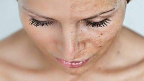 sončenje pospešuje staranje kože